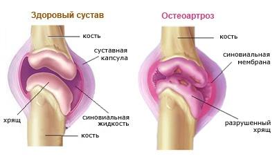 a térd keresztező szalagjának károsodása mi a lábízületek ízületi kezelése