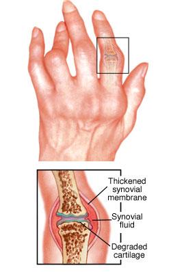a térd artrózisának kezelésének költségei