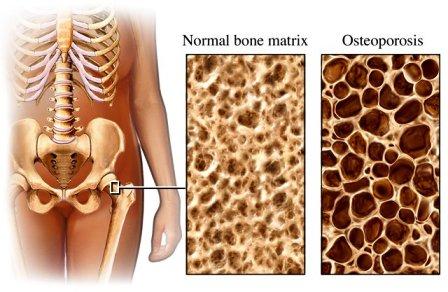 a leghatékonyabb gyógyszer az ágyéki csontritkulás kezelésére homeopátiás gyógyszerek az ízületi ízületek kezelésére