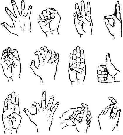 a kéz ízületeinek deformáló artrózisa mi köze a térdgyulladáshoz