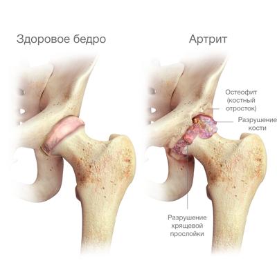 az ízület deformációja deformáló artrózissal jár