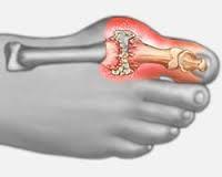 ízület a nagy lábujj kezelése