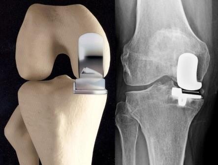 a bal térd artrózisa térdízületi fertőzés duzzanata