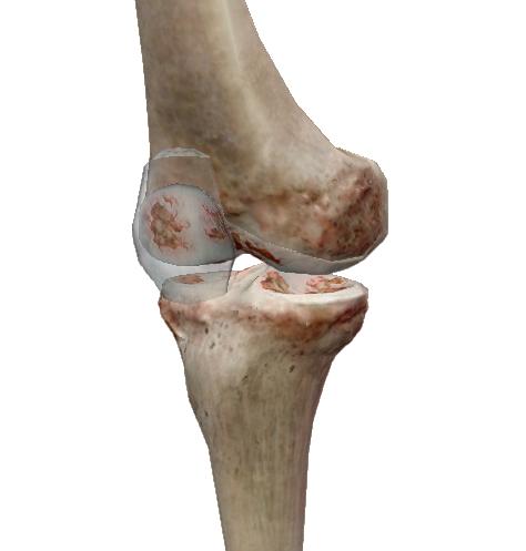 diclofenac injekciók a kézízületek fájdalmához ízületi deformáció
