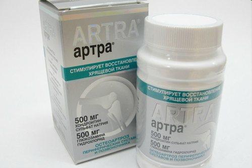ízületi fájdalom és gyulladáscsökkentő gyógyszerek