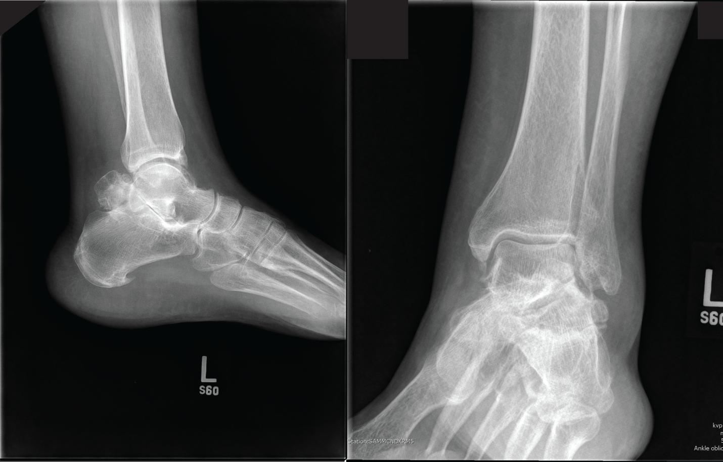 talus artrosis kezelés ízületi fájdalom a lábakban és felett