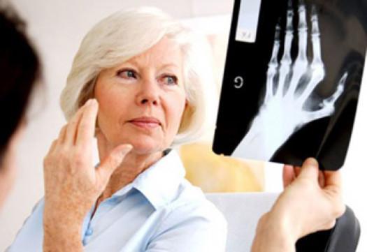 artrózis zselatinkezelése a kézízületek ízületi gyulladása tünetek és kezelés