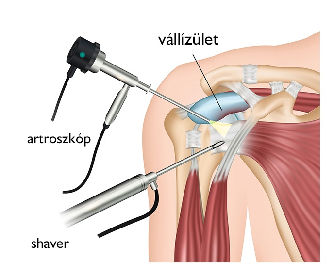 Vállműtét (Vállartroszkópia, Nyitott vállműtét) - Medicover