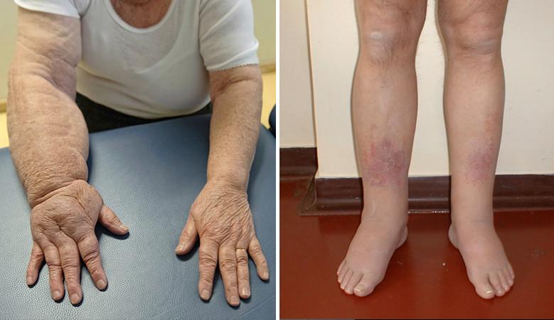 ödéma artritisz kezeléssel