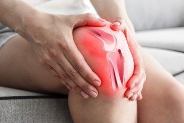 A kenőcsök az ízületi fájdalmakért. Gyulladásgátló Nonsteroid kenőcs