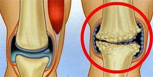 hogyan lehet kezelni a lábak ízületeinek duzzanatát a boka ízületi gyulladása a boka törése után