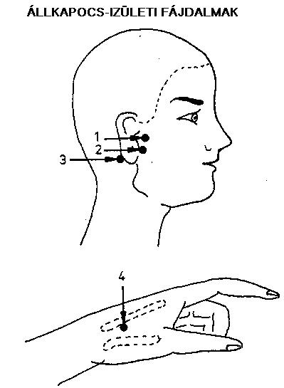 ízületi fájdalom fül