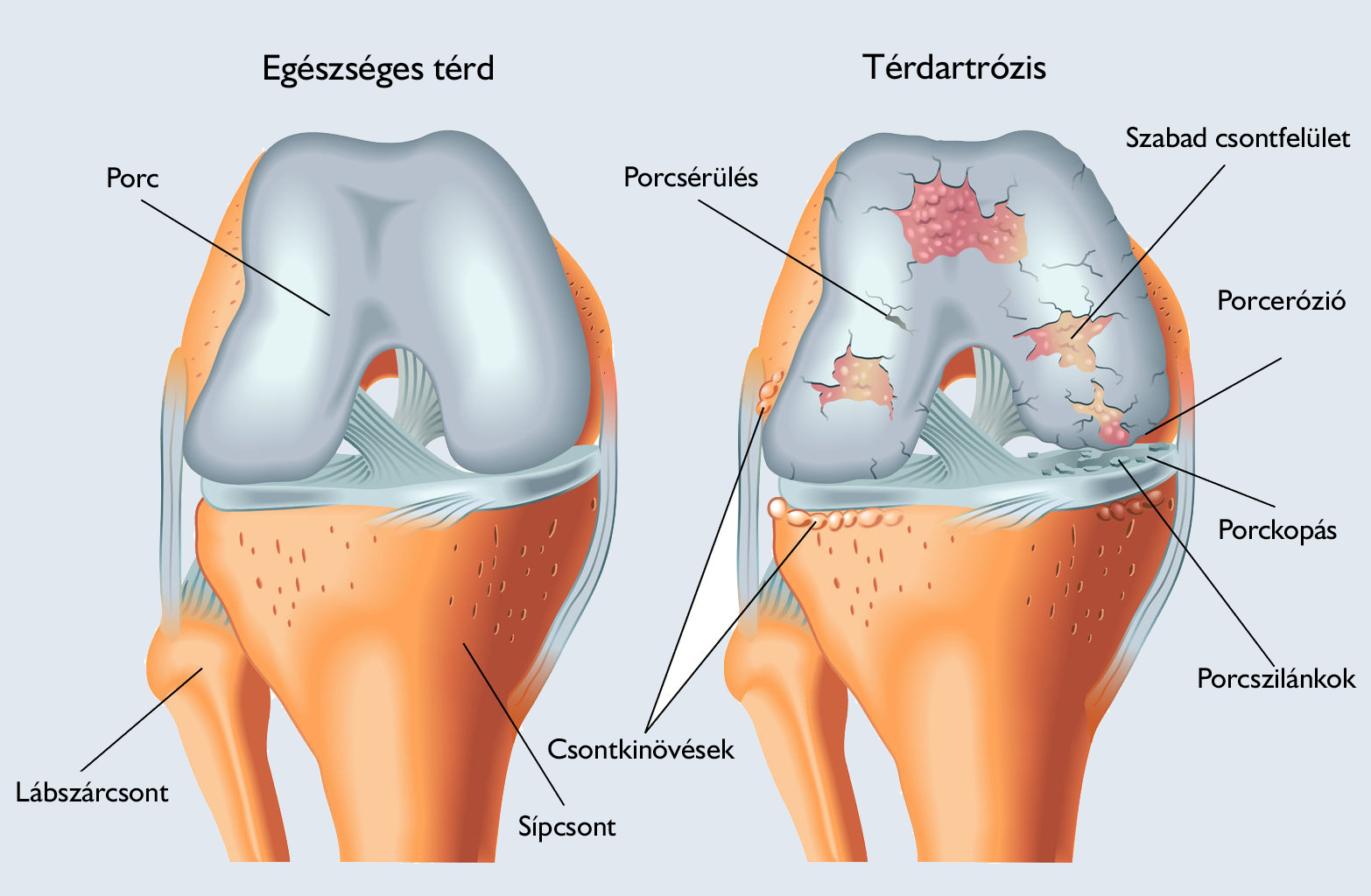 térdízület deformáló ízületi ízületi kezelése a vállízület kezelésének meszesedése
