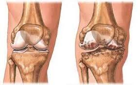 hogyan állíthatjuk le a térd artrózisának kialakulását