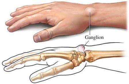 fájdalom a bal kéz vállizülete közelében