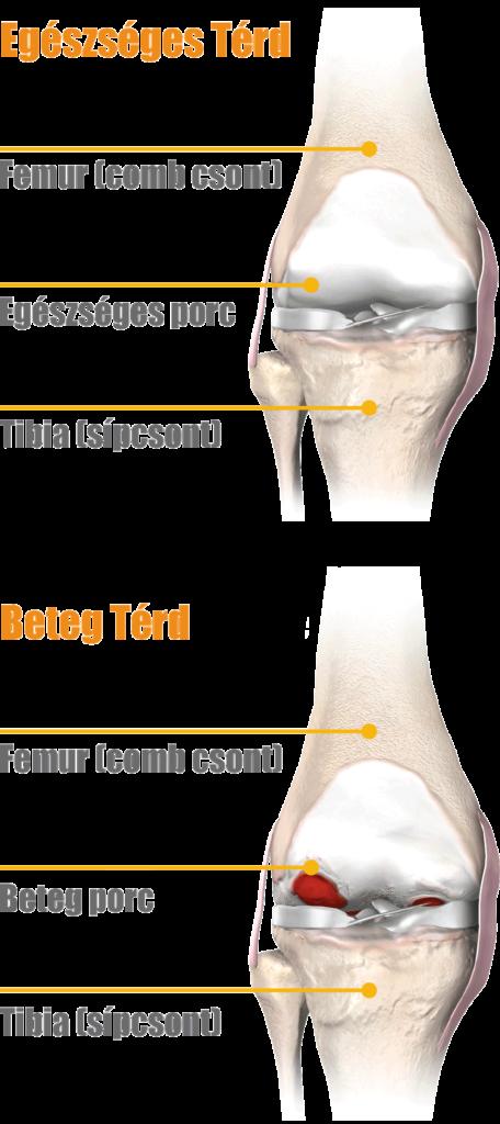 fájdalom a térd artrózisával, mint eltávolításával