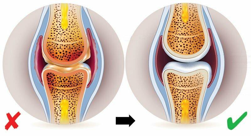 ízületi polyarthritis kezelésére szolgáló gyógyszerek
