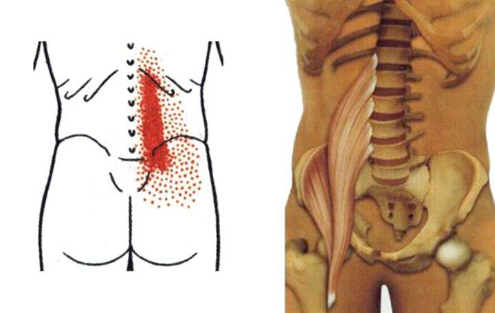 ízületi fájdalom skoliozisból mit kell csinálni fájó ízület a könyök