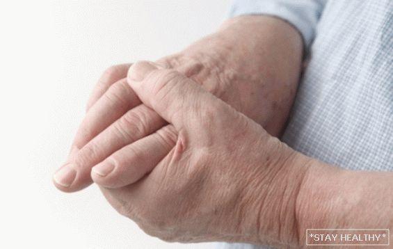 hipotermia után fáj a kéz ízületei gyulladáscsökkentő gyógyszerek artrózis és kezelés céljából