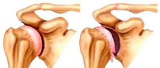 a vállízületek deformáló artrózisa ízületi fájdalom a térdben mi ez