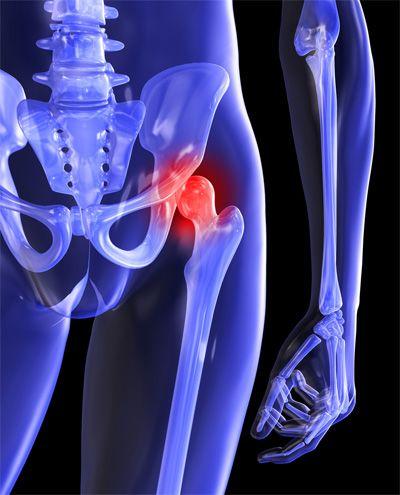 krónikus csípőfájdalom fájdalomcsillapítás a lábakban és az ízületekben