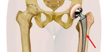 szezám ízületi betegség esetén gyógyszer a térd ízületi gyulladás kezelésére