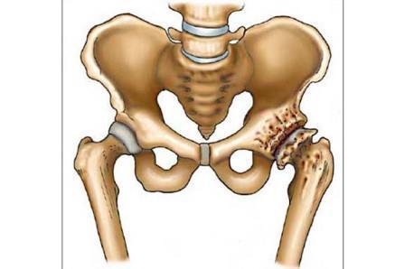 első csípőízületi gyulladás tünetei a térd ízületi gyulladásának kezelése sérülés után