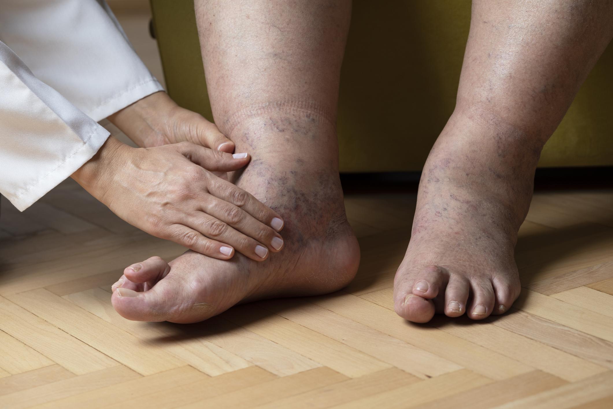 duzzadt láb kezelés ízületi lábak ízületi gyulladása