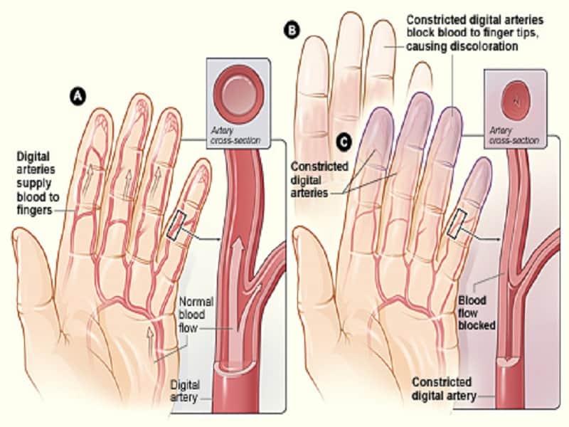 Arthrolon orvosság izom-és ízületi fájdalom ellen