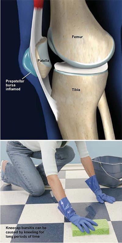 a térd oldalsó ínszalagjának sprain kezelése izület kenőcs