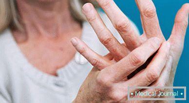 a lábujjak artritisz tünetei ízületi fájdalom következményei