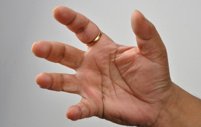 a kis ujjízület fáj, ha meghajlik