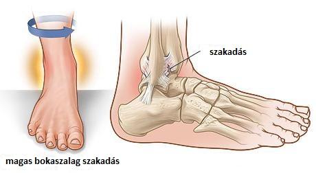 hogyan lehet kezelni a boka duzzanatát a lábak és a kezek ízületeinek betegségeinek kezelése