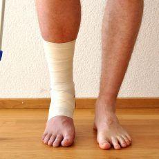 tengeri só artrózisának kezelése