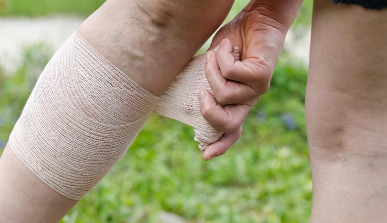 A bal kéz gyűrűujja fáj. Ujjfájás