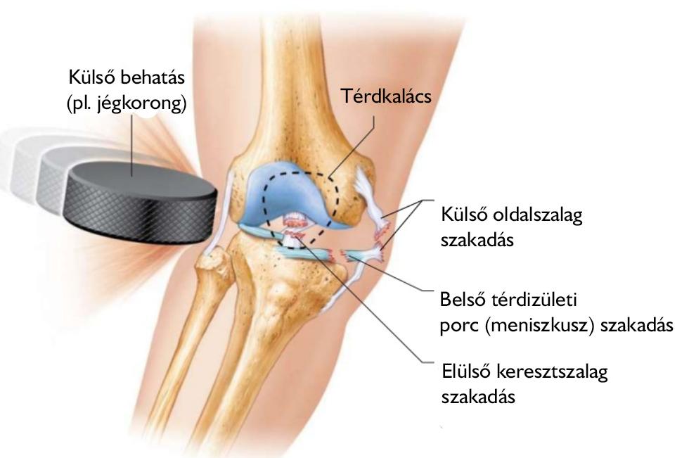 a térd belső oldalsó ínszalagjának sérülései