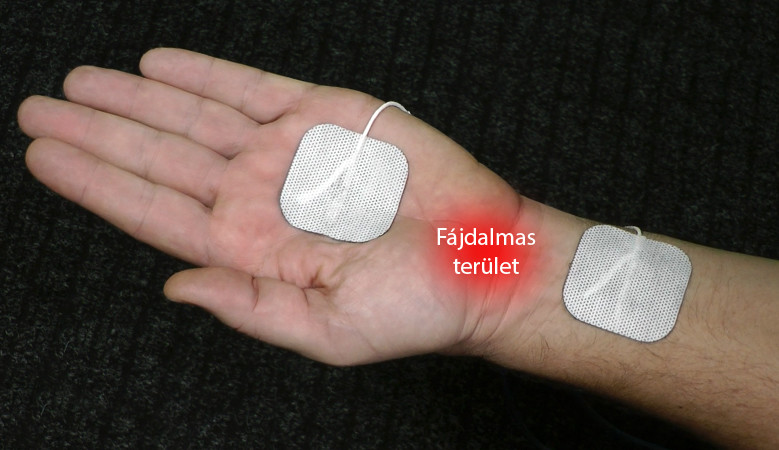 Injekciót a térdízület osteoarthritis gyógyszerek és lekartstva