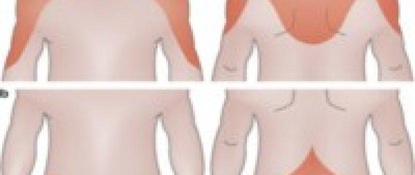 ízületi fájdalom és stroke