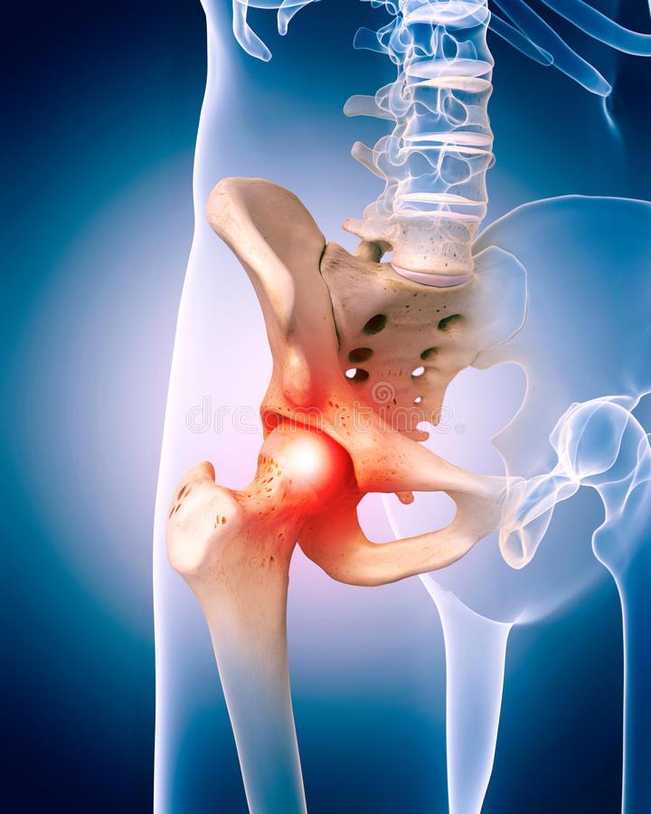 ízületi gyulladás hogyan kezelje magát fájdalomcsillapító tabletták a térdízületek fájdalmához