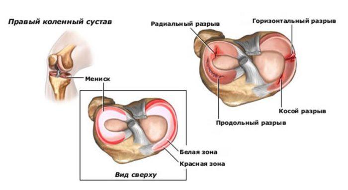 ízületi betegségek a ballerinákban