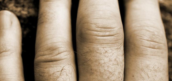 kender ízületi kezelés a láb ízületei nagyon fájnak mint kezelni