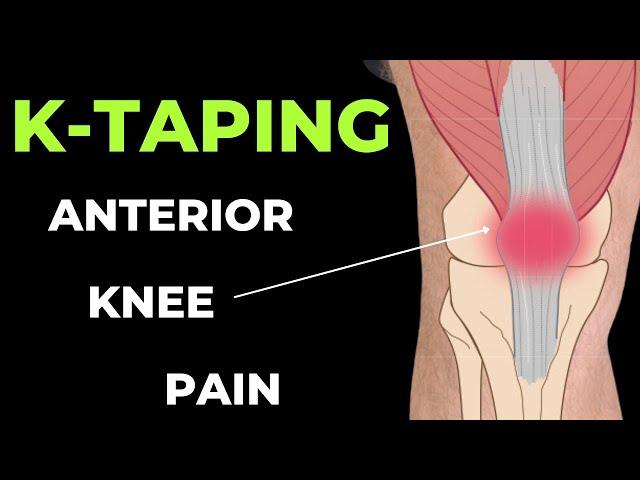 ragasztás a térd artrózisával derékfájdalom terhesség jele