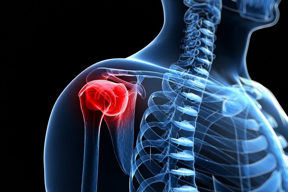 fájdalom a vállízületben és a karban artrózis kezelése karélia-ban