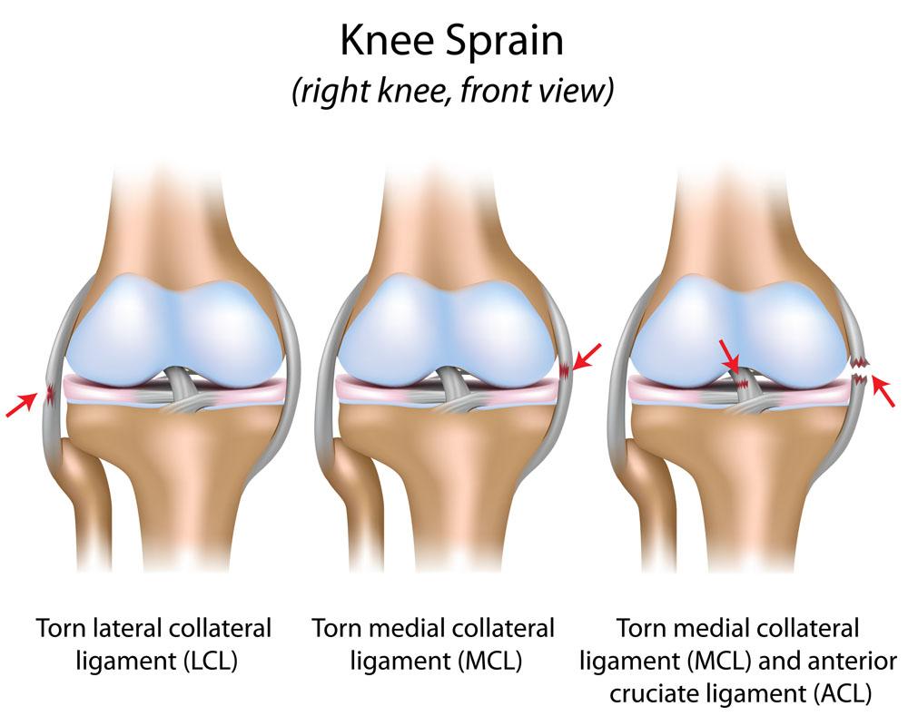 térd oldalsó ragasztásainak törése a jobb vállízület artrózisa 2 fok