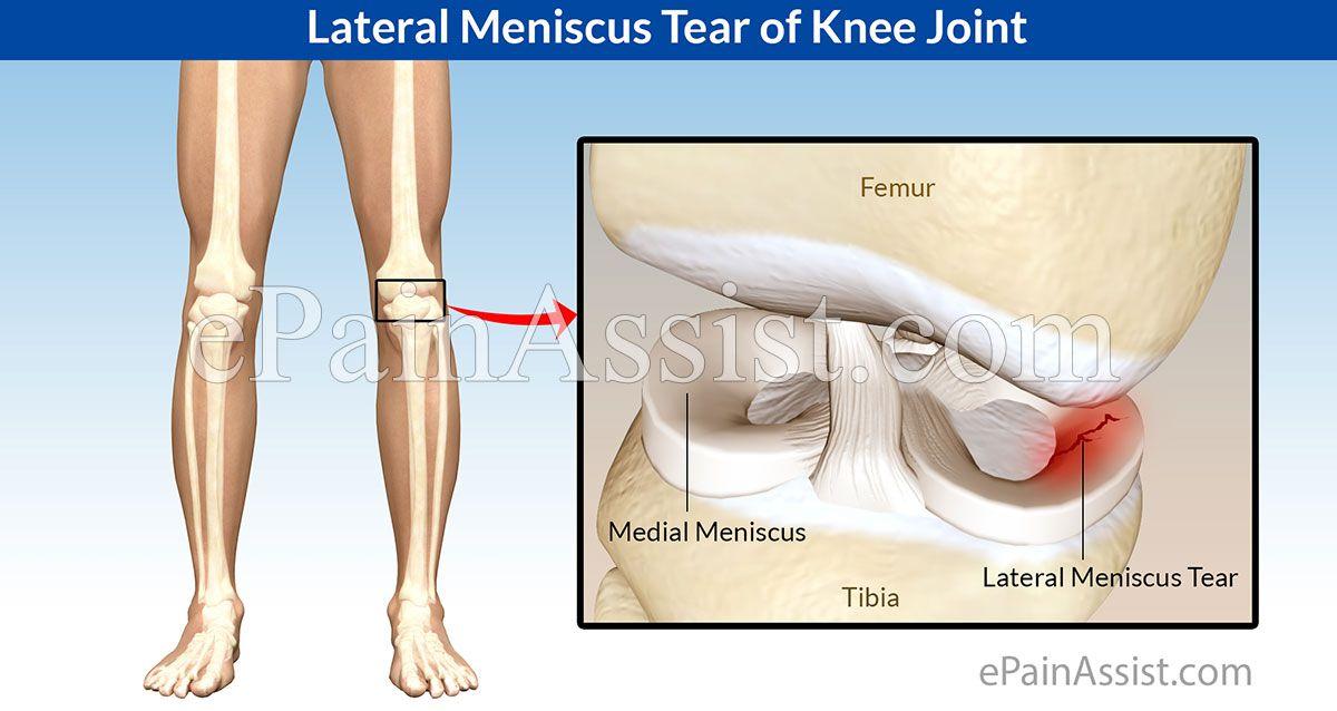 fájó húzó fájdalom a térdben mandalák artrózis kezelésére