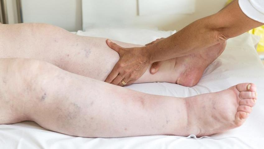 akut térd artritisz tünetek és kezelés ízületi reuma kezelési módszerei