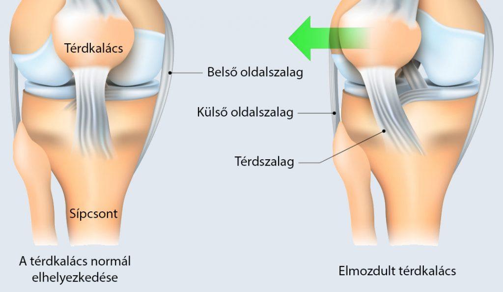 ízületi elmozdulás a térdben a kéz kis ízületeinek ízületi kezelése