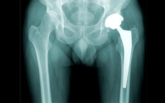 csípőízület artroplasztika fogfájásra legjobb fájdalomcsillapító