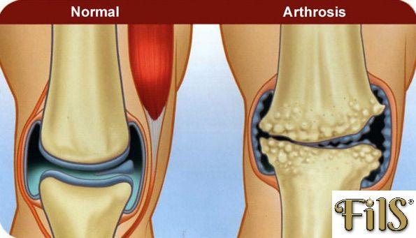 artrózis kezelése assutában