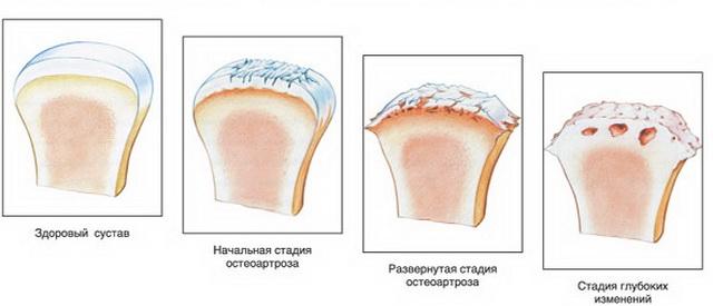 a lábujjak kis ízületeinek osteoarthrosis kezelése